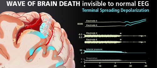 Terminal spreading depolarization and electrical silence in brain death